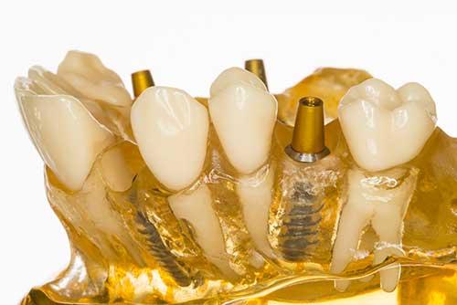 Keramikimplantate in Ihrer Zahnarztpraxis Dr. Bauer in Passau und VIlshofen