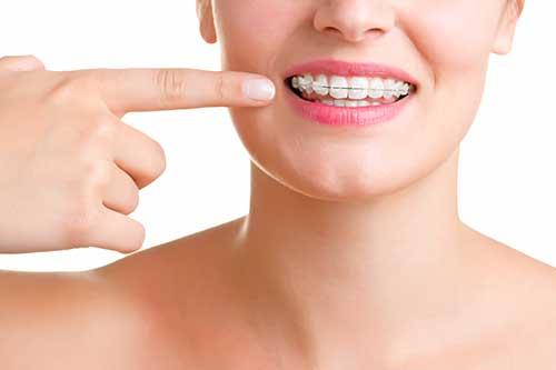Kieferorthopädie, Leistung der Zahnarztpraxis Dr. Bauer in Passau und VIlshofen