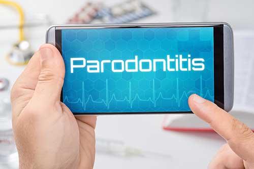 Parodontosebehandlungen in Ihrer Zahnarztpraxis Dr. Bauer in Passau und VIlshofen
