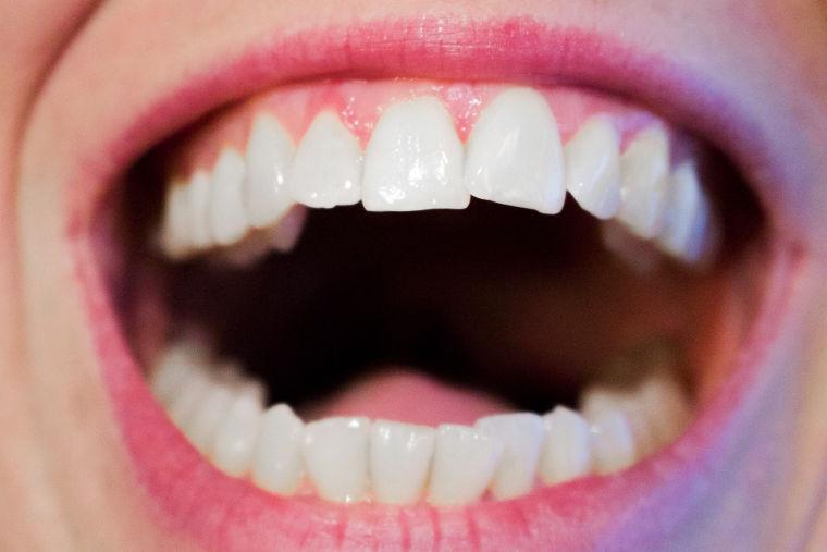 Implantologie / Fast and Fixed-System in Ihrer Zahnarztpraxis Dr. Bauer in Passau und VIlshofen